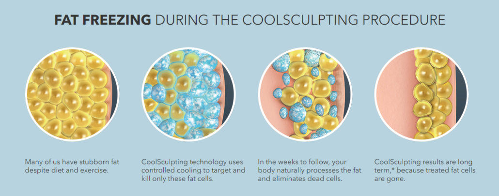 Fat Freezing with CoolSculpting