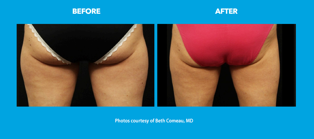 before and after - outer thighs